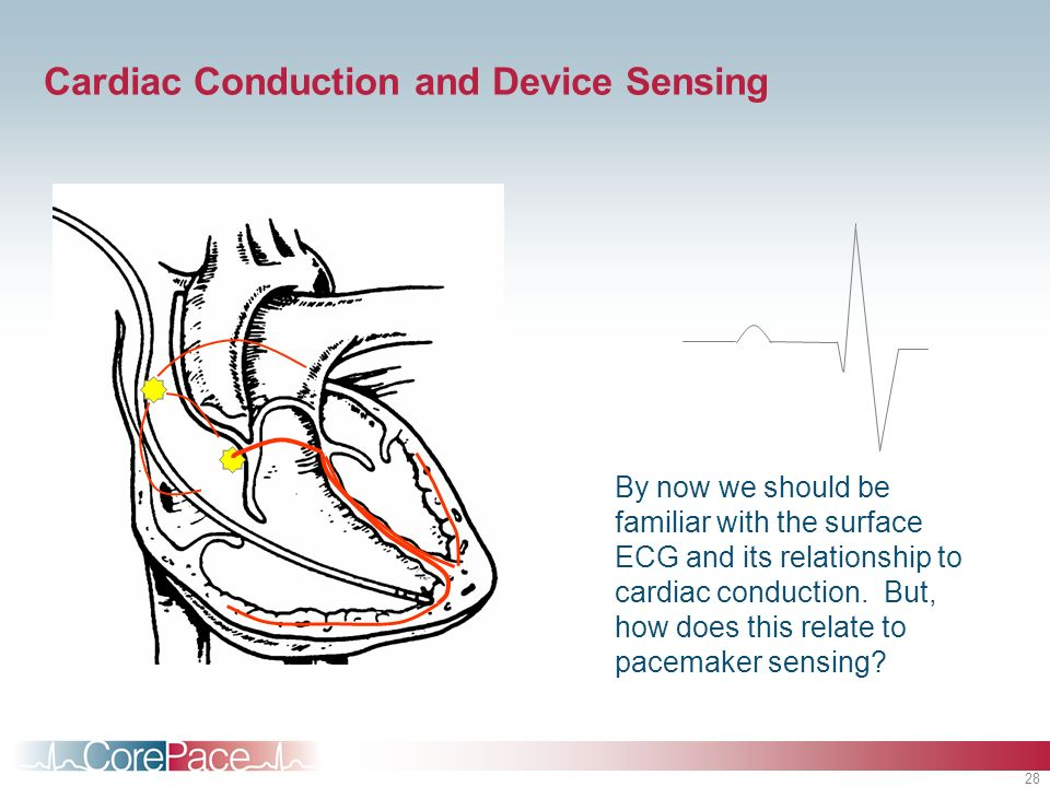 28 Cardiac Conduction and Device Sensing By now we should be familiar with the surface ECG and its relationship to cardiac conduction. But, how does t