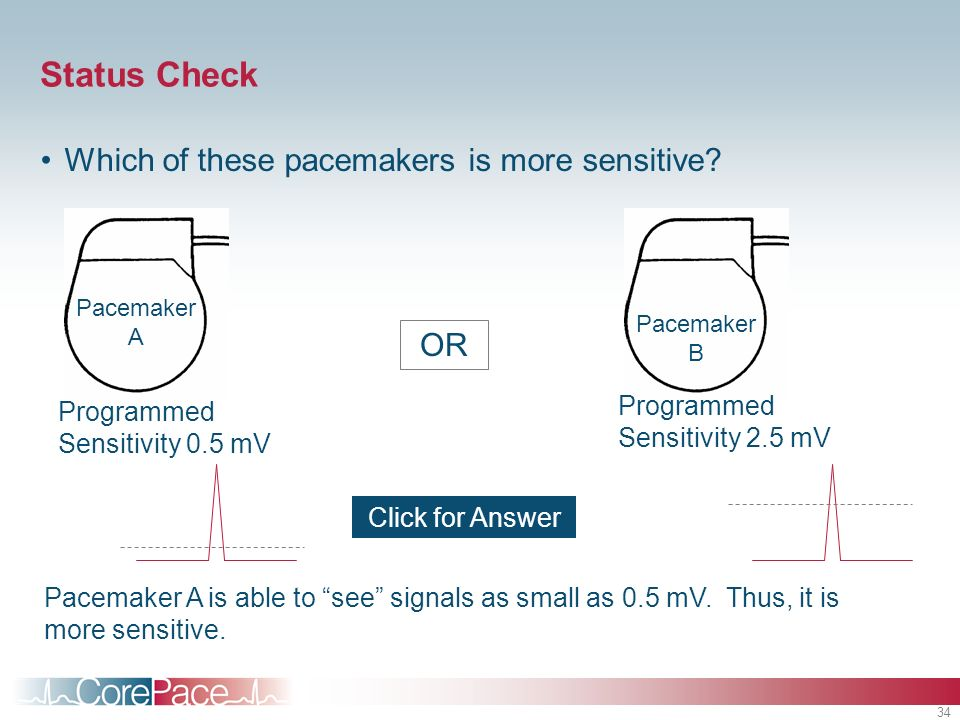 34 Status Check OR Click for Answer Pacemaker A is able to see signals as small as 0.5 mV. Thus, it is more sensitive. Programmed Sensitivity 0.5 mV P