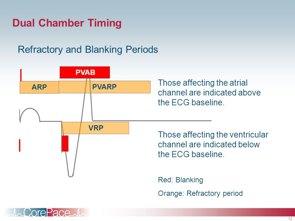 12 Dual Chamber Timing Refractory and Blanking Periods ARP PVARP VRP PVAB Those affecting the atrial channel are indicated above the ECG baseline. Tho