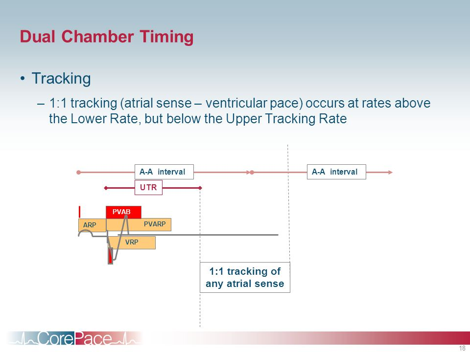 18 Dual Chamber Timing Tracking –1:1 tracking (atrial sense – ventricular pace) occurs at rates above the Lower Rate, but below the Upper Tracking Rat