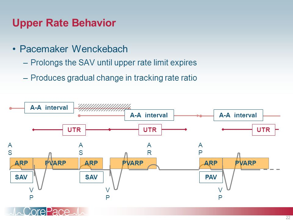 22 PVARP A-A interval Upper Rate Behavior Pacemaker Wenckebach –Prolongs the SAV until upper rate limit expires –Produces gradual change in tracking r