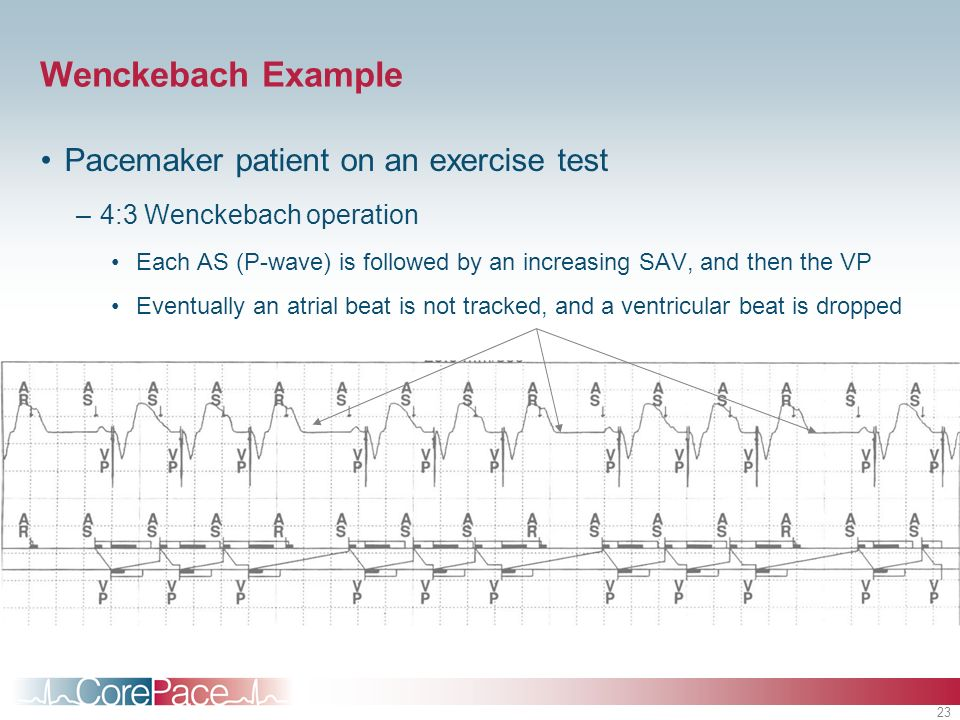 23 Wenckebach Example Pacemaker patient on an exercise test –4:3 Wenckebach operation Each AS (P-wave) is followed by an increasing SAV, and then the