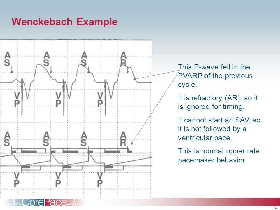 24 Wenckebach Example This P-wave fell in the PVARP of the previous cycle. It is refractory (AR), so it is ignored for timing. It cannot start an SAV,