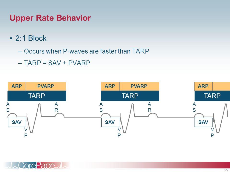 25 Upper Rate Behavior 2:1 Block –Occurs when P-waves are faster than TARP –TARP = SAV + PVARP PVARPARP SAV VPVP ASAS ARAR PVARPARP SAV VPVP ASAS ARAR