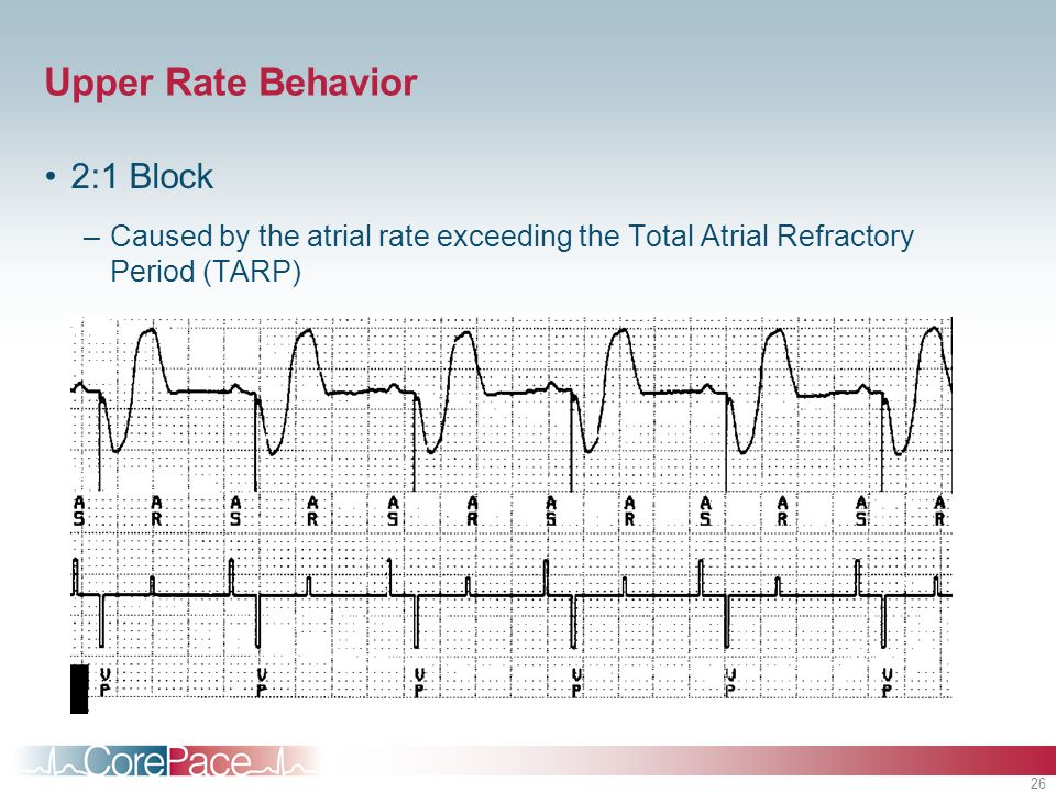 26 Upper Rate Behavior 2:1 Block –Caused by the atrial rate exceeding the Total Atrial Refractory Period (TARP)