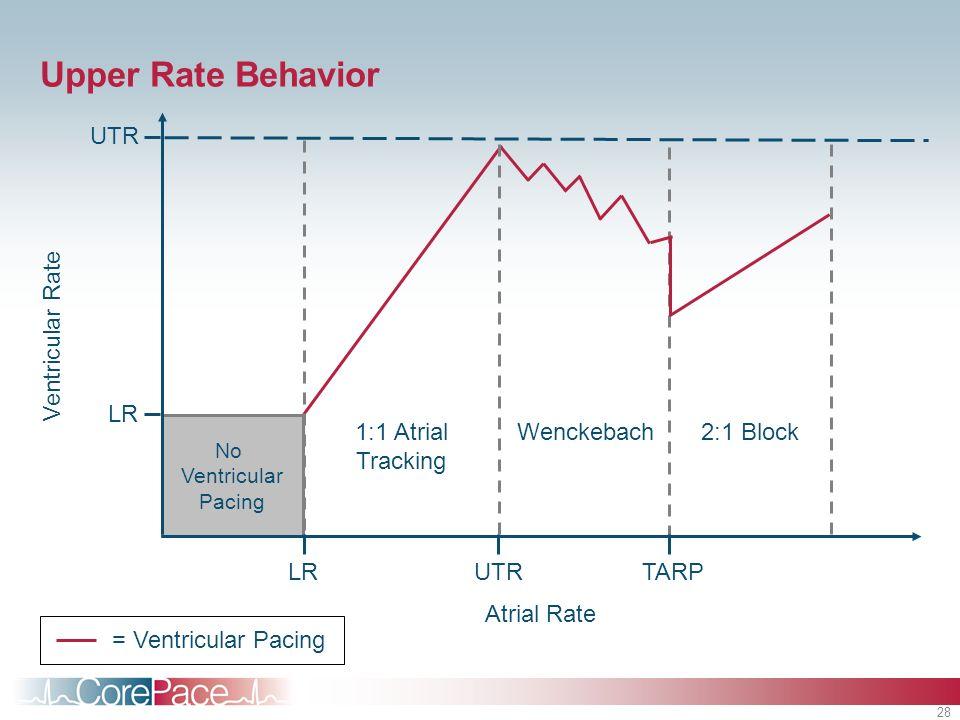28 Wenckebach No Ventricular Pacing Upper Rate Behavior UTR Atrial Rate Ventricular Rate LR 1:1 Atrial Tracking 2:1 Block UTRLRTARP = Ventricular Paci