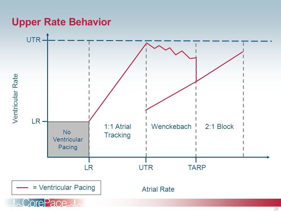 29 Wenckebach No Ventricular Pacing Upper Rate Behavior UTR Atrial Rate Ventricular Rate LR 1:1 Atrial Tracking 2:1 Block UTRLRTARP = Ventricular Paci