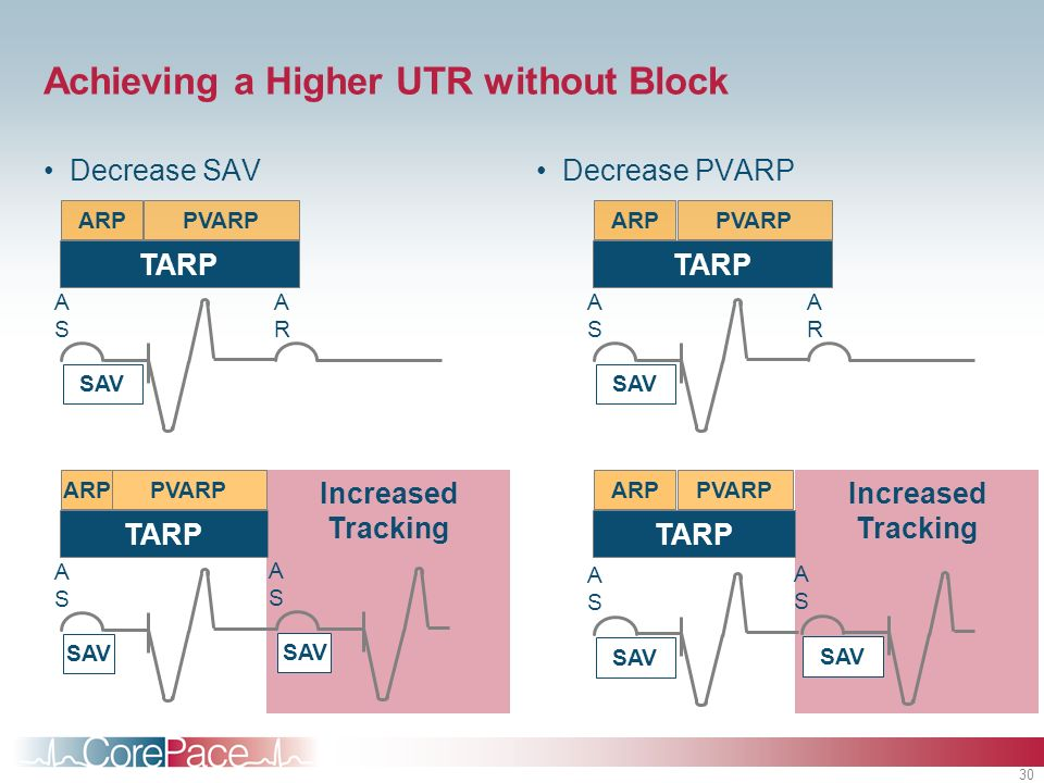 30 Increased Tracking Achieving a Higher UTR without Block Decrease SAVDecrease PVARP PVARPARP SAV ASAS ARAR TARP SAV ASAS ASAS PVARPARP TARP PVARPARP