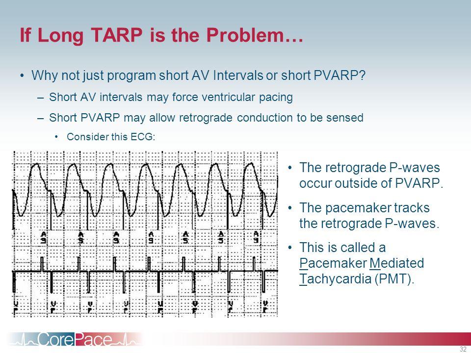 32 If Long TARP is the Problem… Why not just program short AV Intervals or short PVARP? –Short AV intervals may force ventricular pacing –Short PVARP