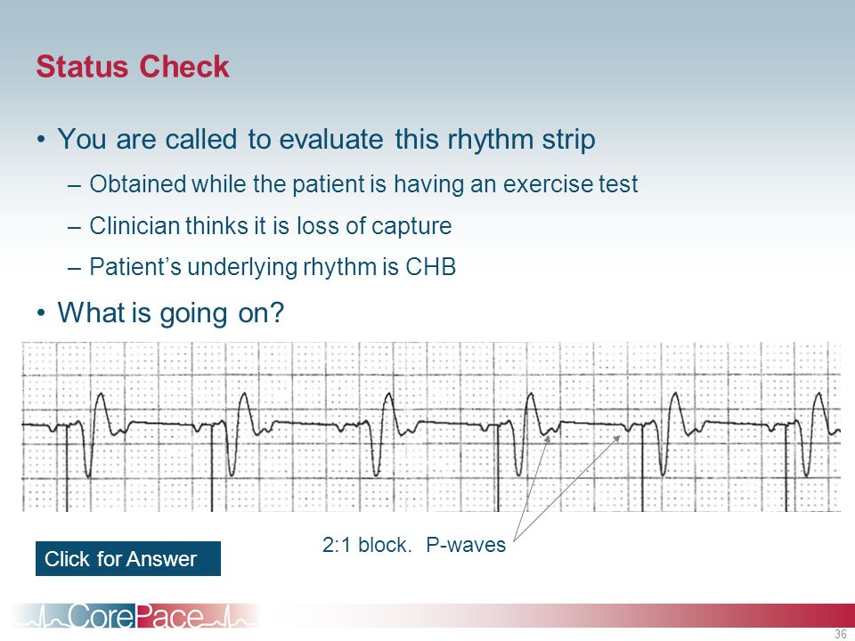 36 Status Check You are called to evaluate this rhythm strip –Obtained while the patient is having an exercise test –Clinician thinks it is loss of ca