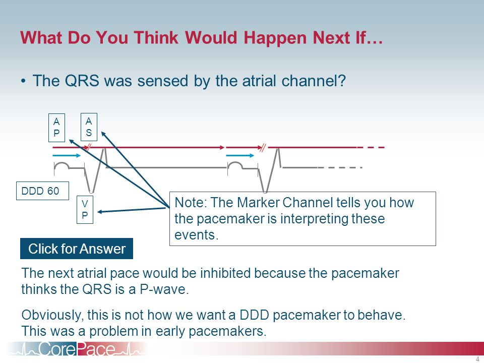 4 What Do You Think Would Happen Next If… The QRS was sensed by the atrial channel? The next atrial pace would be inhibited because the pacemaker thin