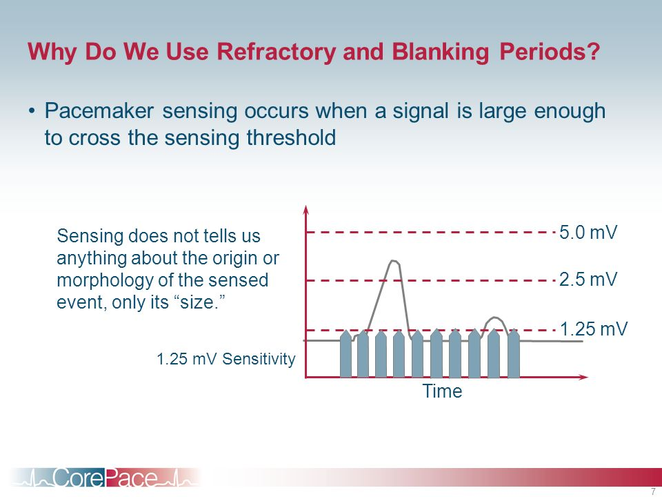 7 Why Do We Use Refractory and Blanking Periods? Pacemaker sensing occurs when a signal is large enough to cross the sensing threshold 1.25 mV Sensiti