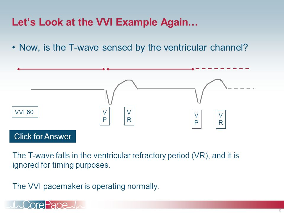 9 Lets Look at the VVI Example Again… Now, is the T-wave sensed by the ventricular channel? VPVP VRVR VPVP VRVR The T-wave falls in the ventricular re
