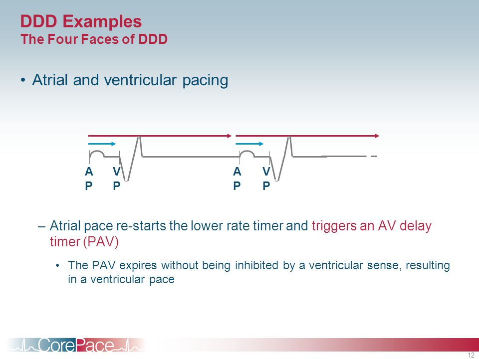 12 DDD Examples The Four Faces of DDD Atrial and ventricular pacing –Atrial pace re-starts the lower rate timer and triggers an AV delay timer (PAV) T