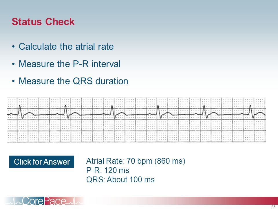 23 Status Check Calculate the atrial rate Measure the P-R interval Measure the QRS duration Click for Answer Atrial Rate: 70 bpm (860 ms) P-R: 120 ms