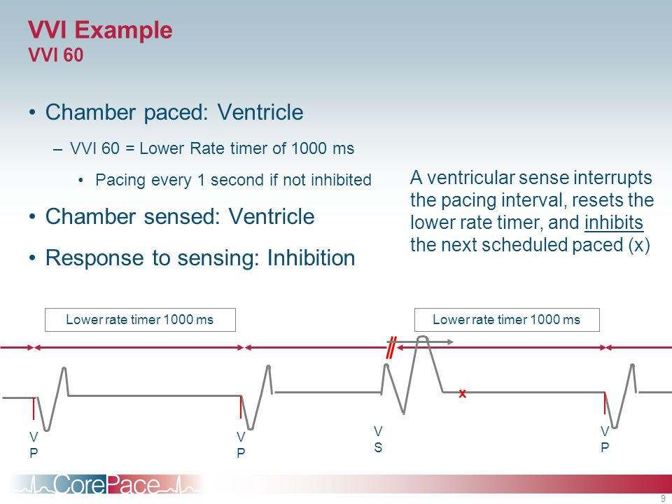 9 VVI Example VVI 60 Chamber paced: Ventricle –VVI 60 = Lower Rate timer of 1000 ms Pacing every 1 second if not inhibited Chamber sensed: Ventricle R