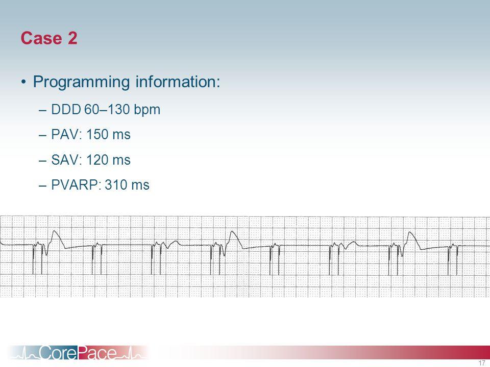 17 Case 2 Programming information: –DDD 60–130 bpm –PAV: 150 ms –SAV: 120 ms –PVARP: 310 ms