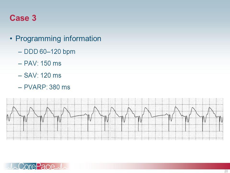20 Case 3 Programming information –DDD 60–120 bpm –PAV: 150 ms –SAV: 120 ms –PVARP: 380 ms