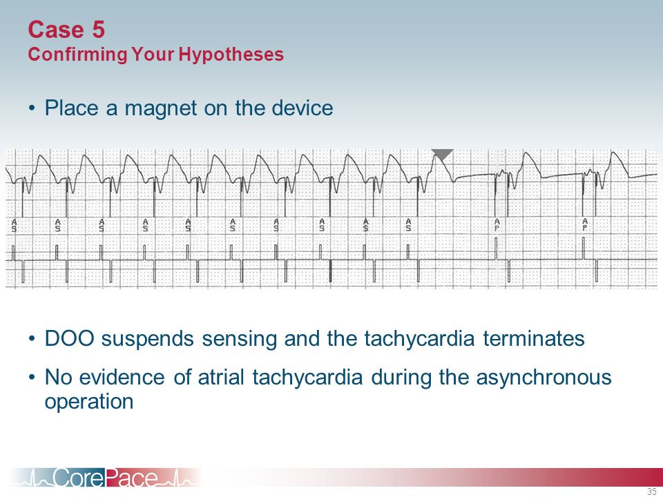 35 Case 5 Confirming Your Hypotheses Place a magnet on the device DOO suspends sensing and the tachycardia terminates No evidence of atrial tachycardi