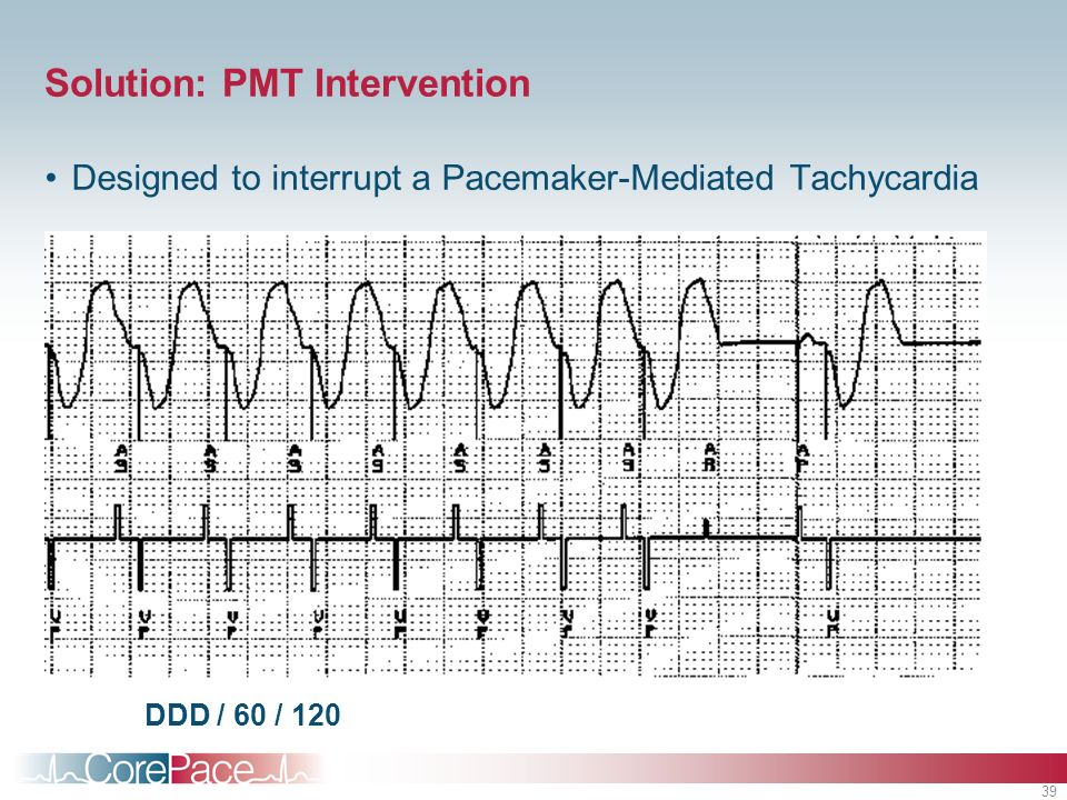 39 Solution: PMT Intervention Designed to interrupt a Pacemaker-Mediated Tachycardia DDD / 60 / 120