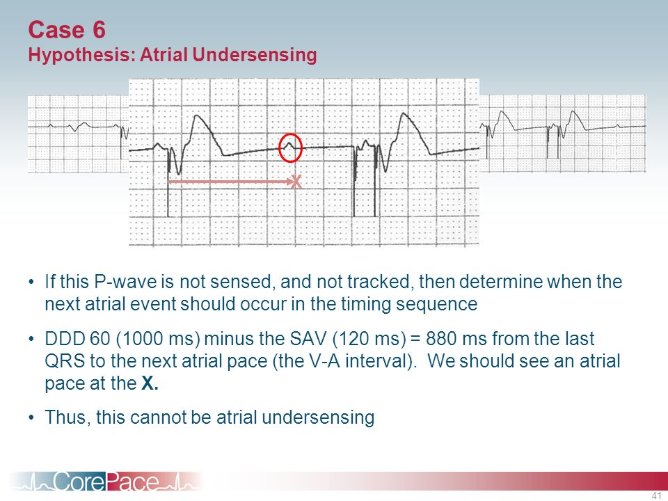 41 Case 6 Hypothesis: Atrial Undersensing If this P-wave is not sensed, and not tracked, then determine when the next atrial event should occur in the