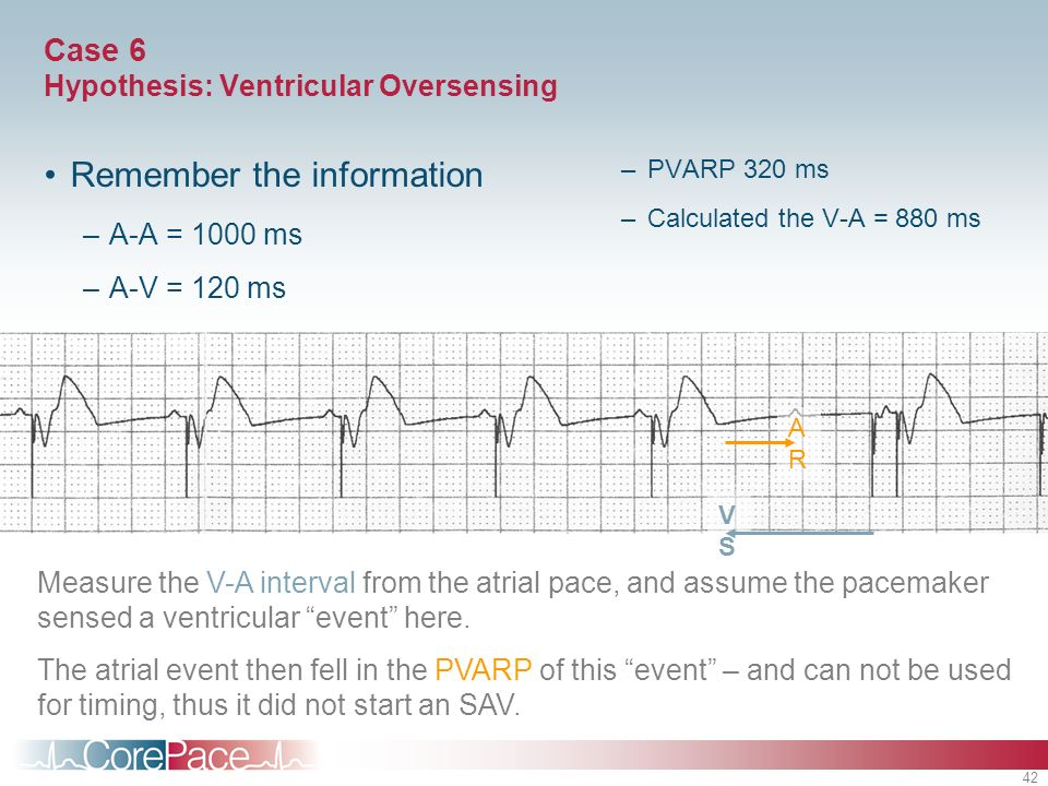 42 Case 6 Hypothesis: Ventricular Oversensing Remember the information –A-A = 1000 ms –A-V = 120 ms –PVARP 320 ms –Calculated the V-A = 880 ms VSVS AR