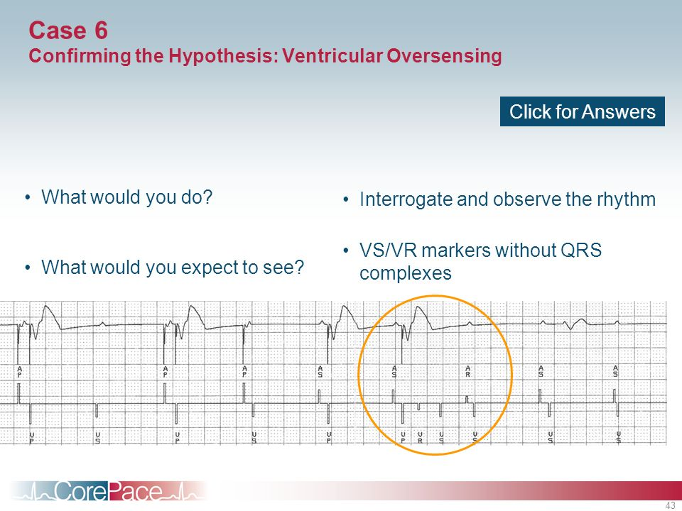 43 What would you do? What would you expect to see? Interrogate and observe the rhythm VS/VR markers without QRS complexes Click for Answers Case 6 Co