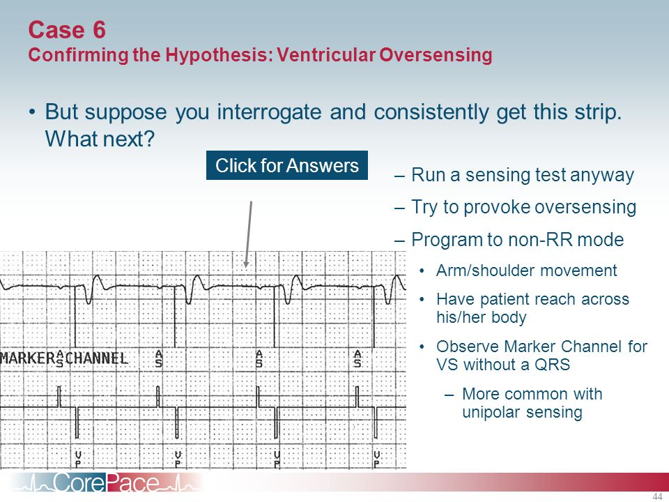 44 Case 6 Confirming the Hypothesis: Ventricular Oversensing But suppose you interrogate and consistently get this strip. What next? –Run a sensing te