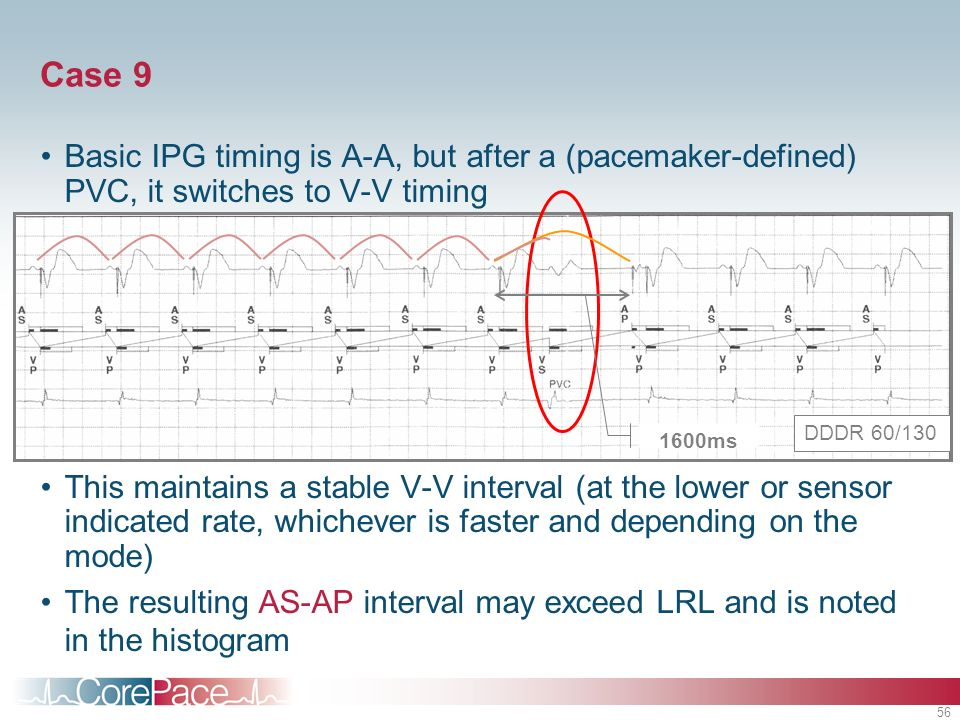 56 Case 9 Basic IPG timing is A-A, but after a (pacemaker-defined) PVC, it switches to V-V timing This maintains a stable V-V interval (at the lower o