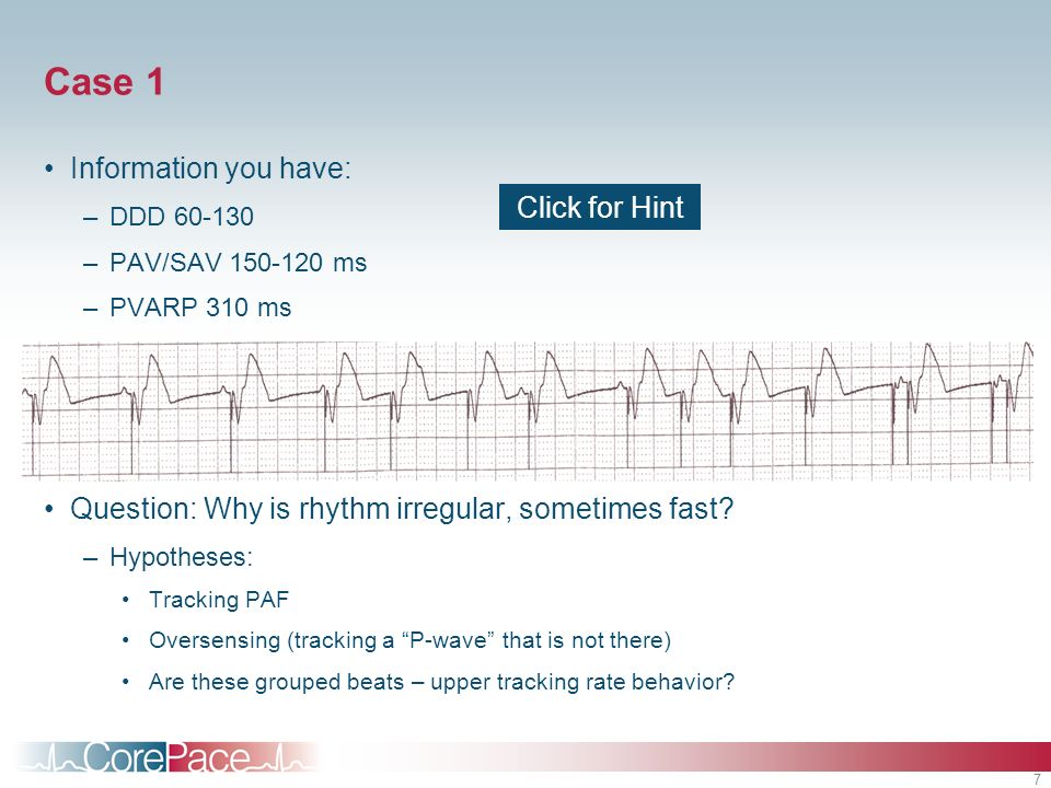 7 Case 1 Information you have: –DDD 60-130 –PAV/SAV 150-120 ms –PVARP 310 ms Question: Why is rhythm irregular, sometimes fast? –Hypotheses: Tracking