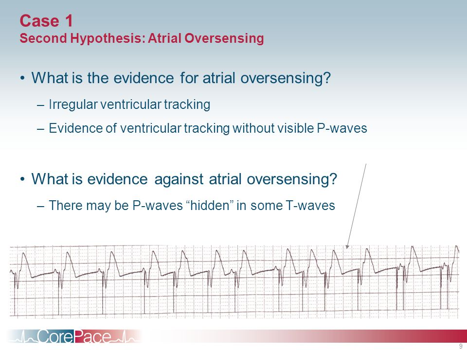 9 Case 1 Second Hypothesis: Atrial Oversensing What is the evidence for atrial oversensing? –Irregular ventricular tracking –Evidence of ventricular t