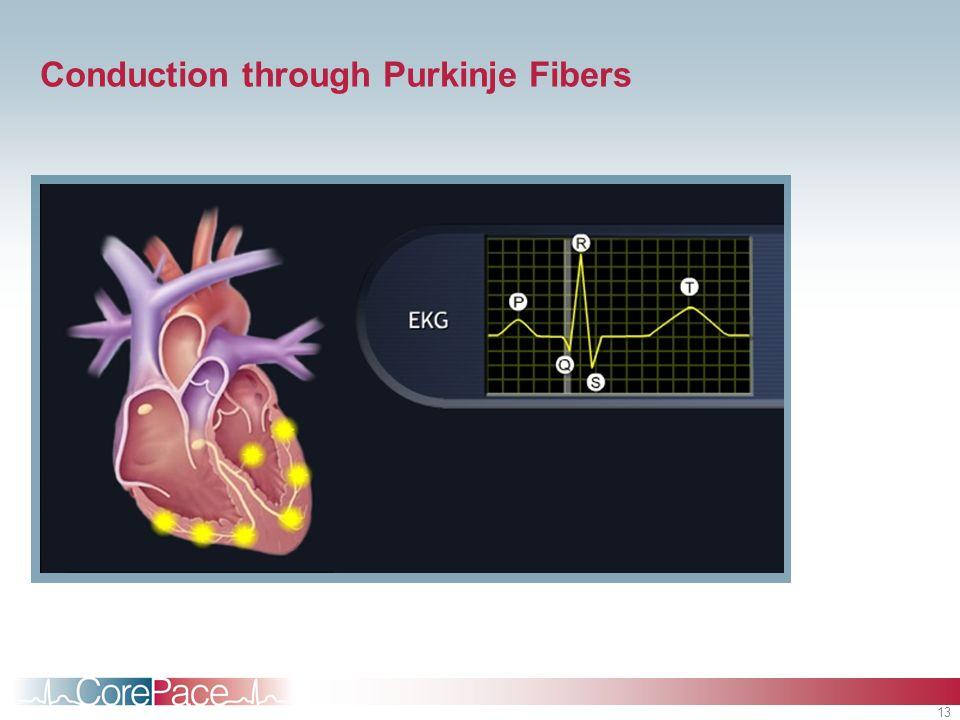 13 Conduction through Purkinje Fibers