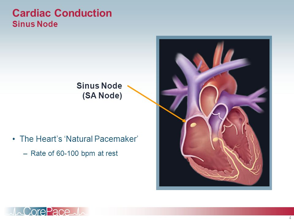4 Cardiac Conduction Sinus Node The Hearts Natural Pacemaker –Rate of 60-100 bpm at rest Sinus Node (SA Node)