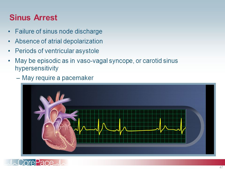 47 Sinus Arrest Failure of sinus node discharge Absence of atrial depolarization Periods of ventricular asystole May be episodic as in vaso-vagal sync