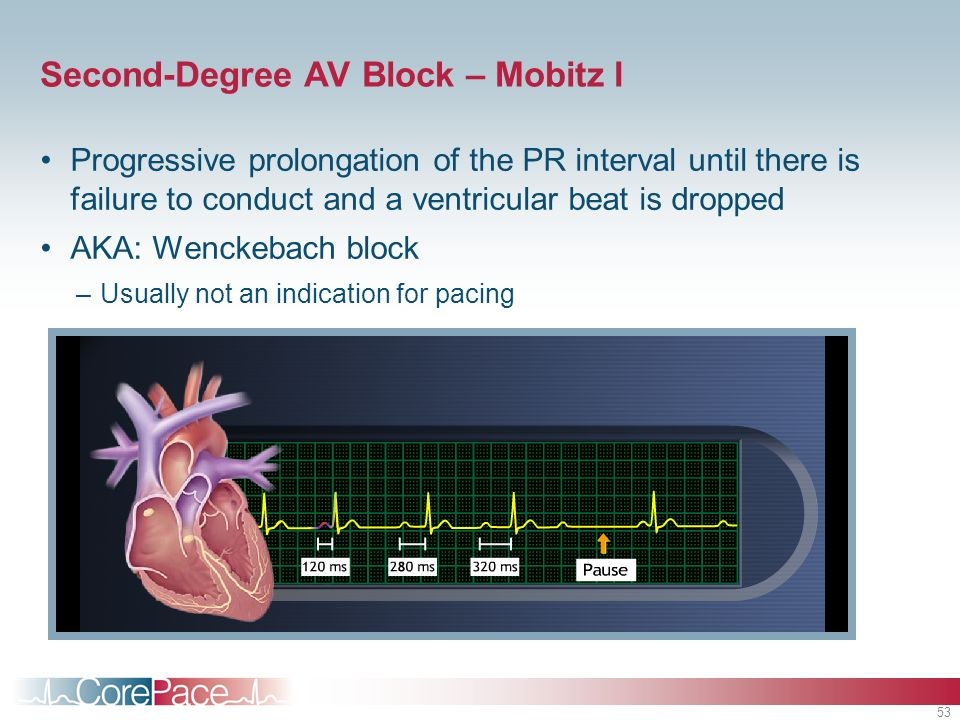 53 Second-Degree AV Block – Mobitz I Progressive prolongation of the PR interval until there is failure to conduct and a ventricular beat is dropped A