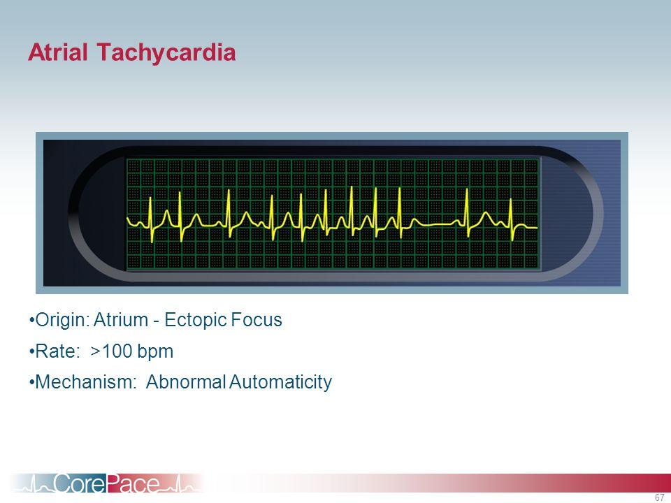 67 Atrial Tachycardia Origin: Atrium - Ectopic Focus Rate: >100 bpm Mechanism: Abnormal Automaticity