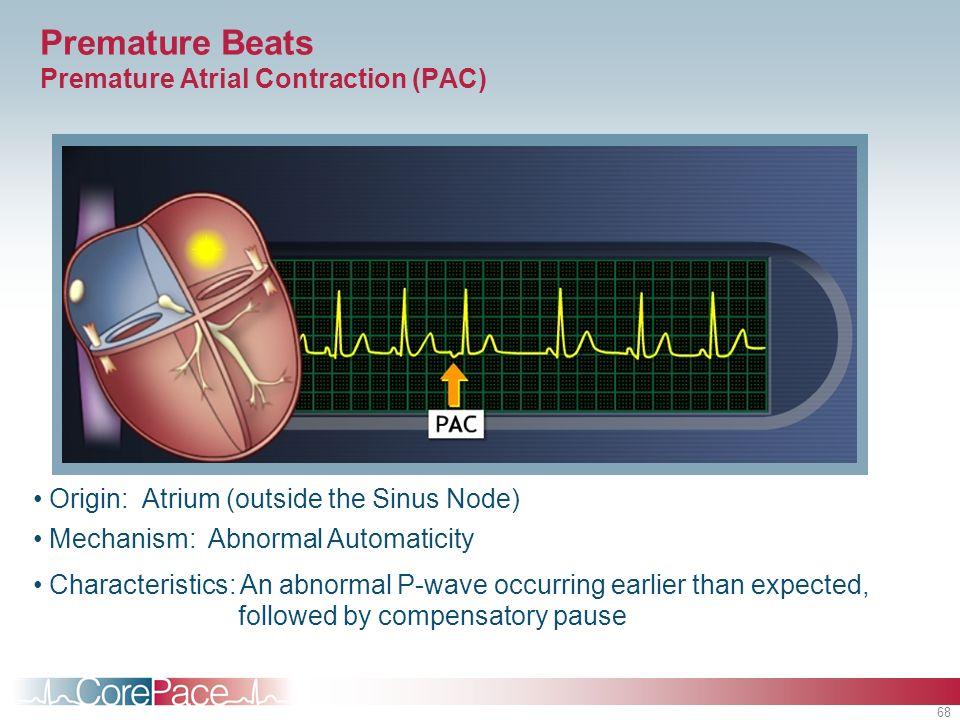 68 Premature Beats Premature Atrial Contraction (PAC) Origin: Atrium (outside the Sinus Node) Mechanism: Abnormal Automaticity Characteristics: An abn