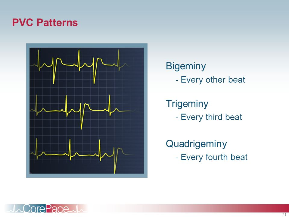 71 PVC Patterns Bigeminy -Every other beat Trigeminy -Every third beat Quadrigeminy -Every fourth beat