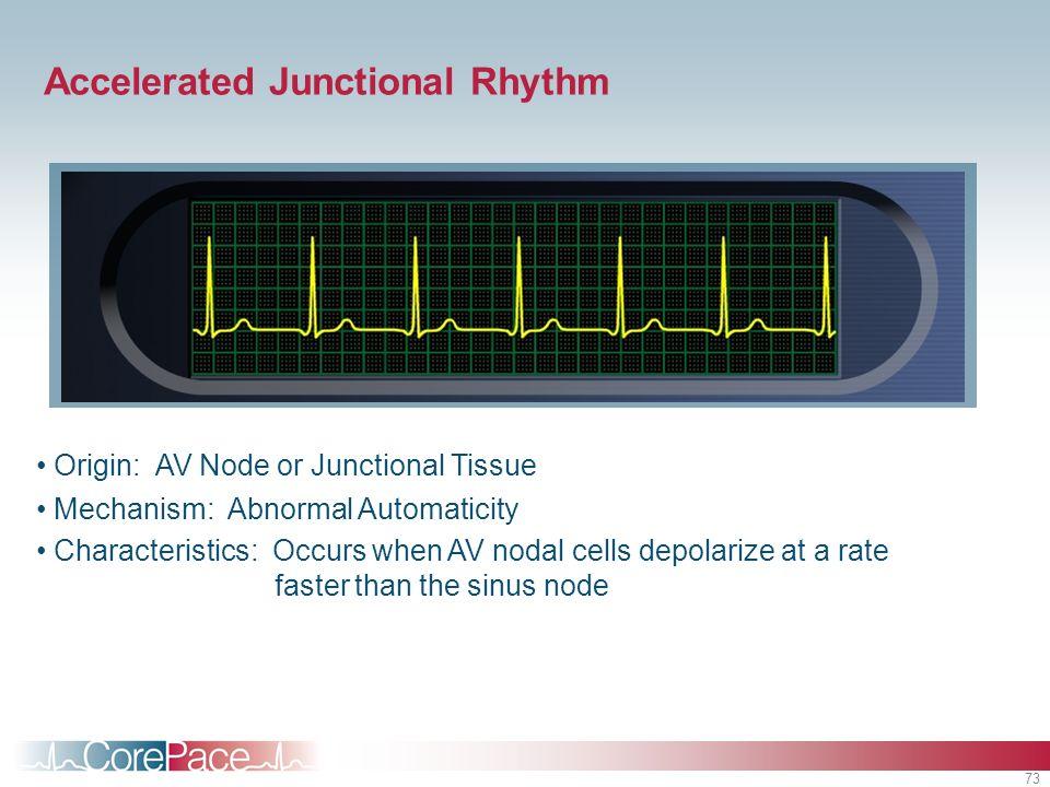 73 Accelerated Junctional Rhythm Origin: AV Node or Junctional Tissue Mechanism: Abnormal Automaticity Characteristics: Occurs when AV nodal cells dep