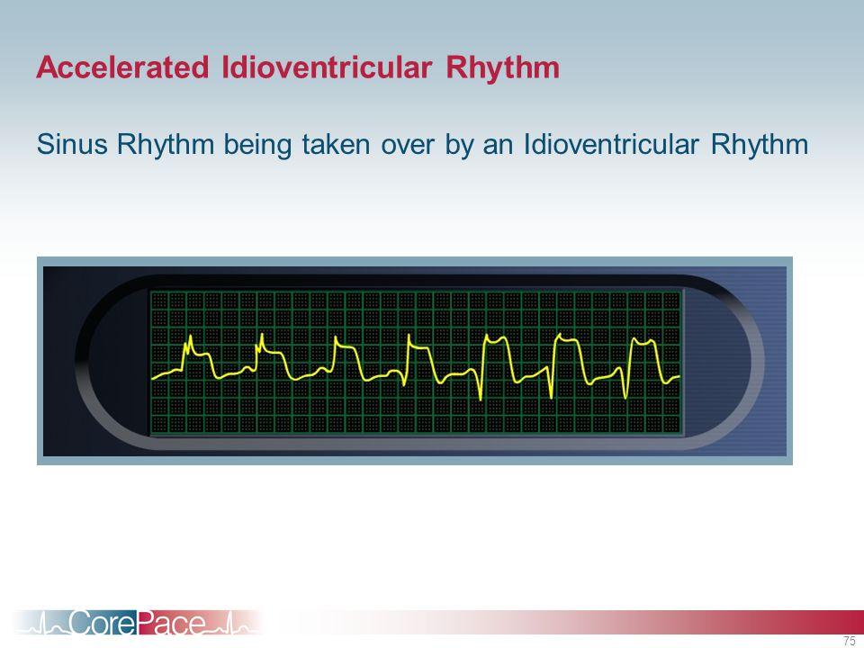 75 Accelerated Idioventricular Rhythm Sinus Rhythm being taken over by an Idioventricular Rhythm