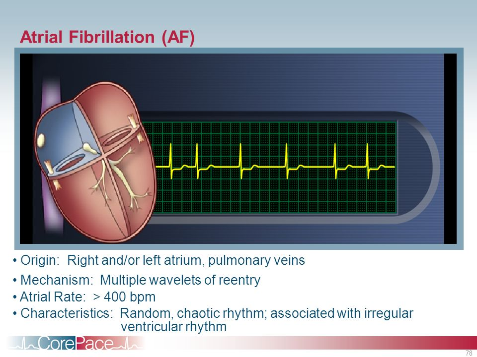 78 Origin: Right and/or left atrium, pulmonary veins Mechanism: Multiple wavelets of reentry Atrial Rate: > 400 bpm Characteristics: Random, chaotic r