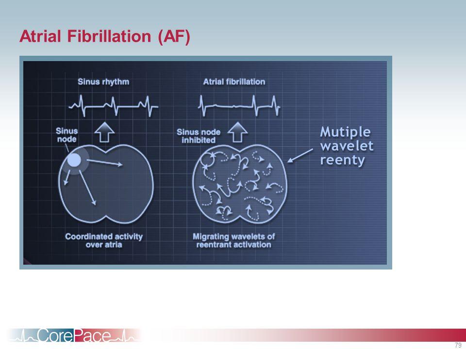 79 Atrial Fibrillation (AF)