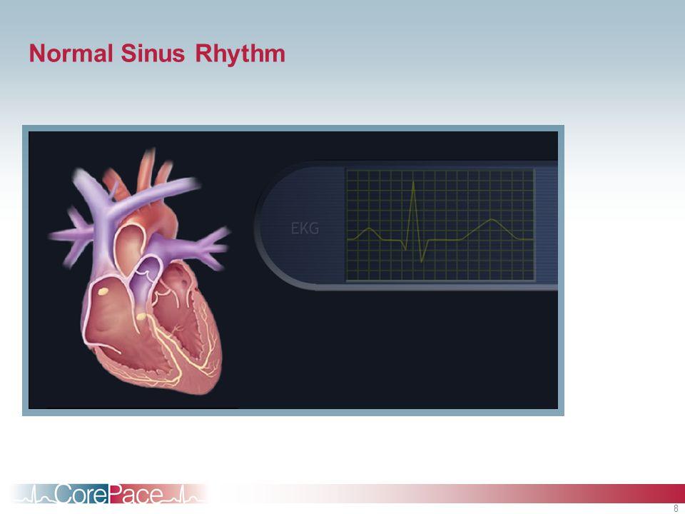 8 Normal Sinus Rhythm
