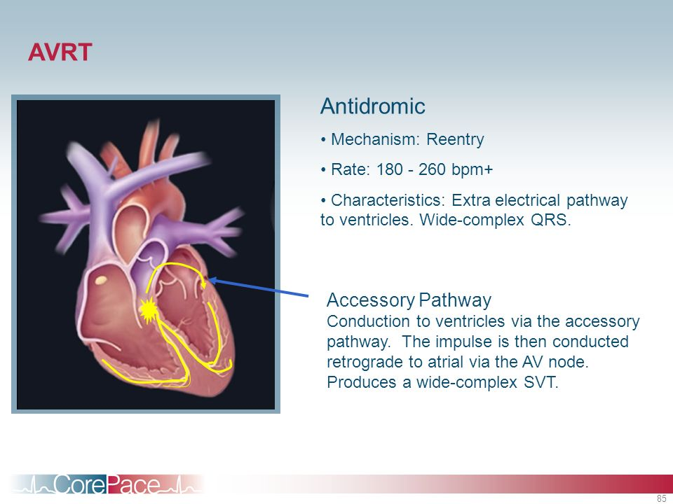 85 Antidromic Mechanism: Reentry Rate: 180 - 260 bpm+ Characteristics: Extra electrical pathway to ventricles. Wide-complex QRS. AVRT Accessory Pathwa
