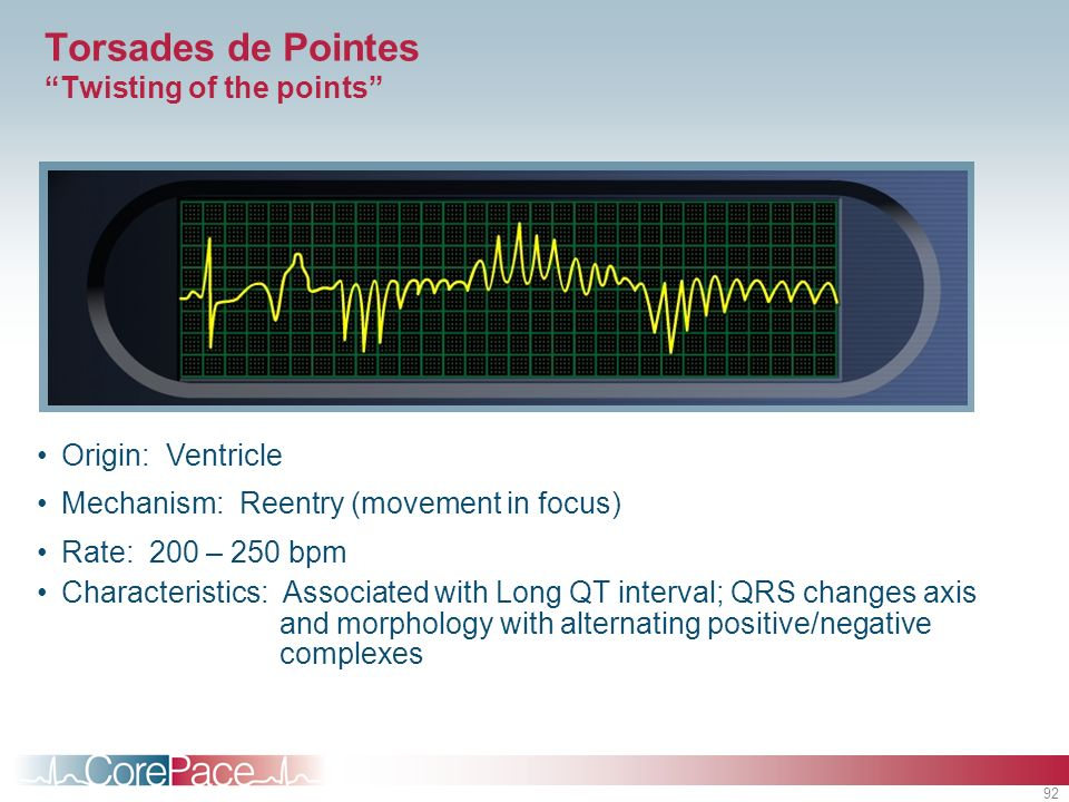 92 Origin: Ventricle Mechanism: Reentry (movement in focus) Rate: 200 – 250 bpm Characteristics: Associated with Long QT interval; QRS changes axis an