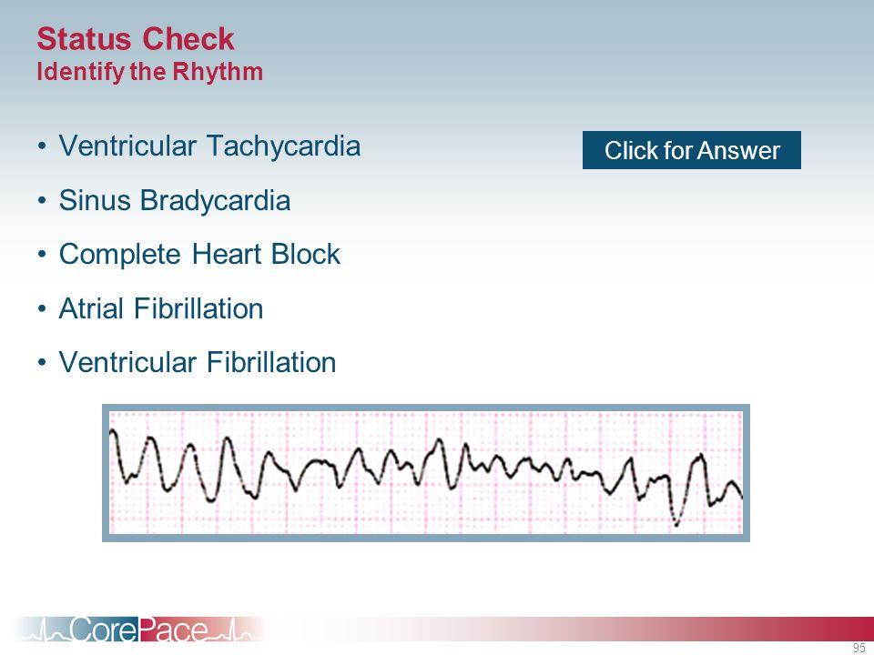 95 Status Check Identify the Rhythm Ventricular Tachycardia Sinus Bradycardia Complete Heart Block Atrial Fibrillation Ventricular Fibrillation Click