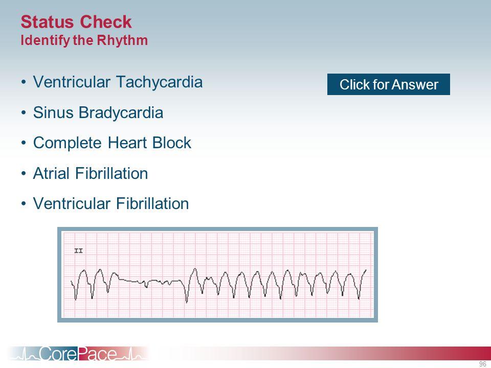 96 Status Check Identify the Rhythm Ventricular Tachycardia Sinus Bradycardia Complete Heart Block Atrial Fibrillation Ventricular Fibrillation Click