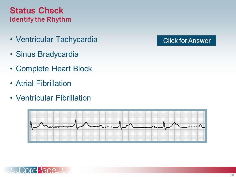98 Status Check Identify the Rhythm Ventricular Tachycardia Sinus Bradycardia Complete Heart Block Atrial Fibrillation Ventricular Fibrillation Click