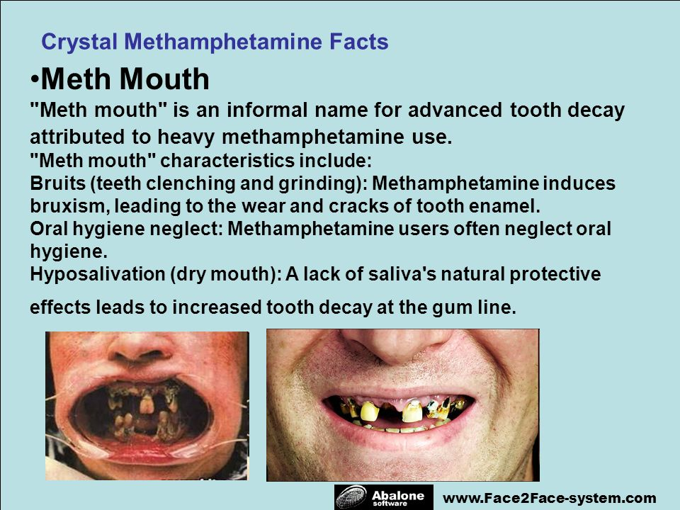 www.Face2Face-system.com Meth Mouth