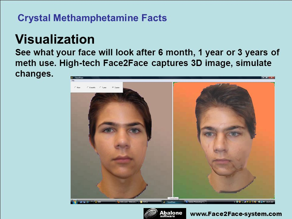 www.Face2Face-system.com Visualization See what your face will look after 6 month, 1 year or 3 years of meth use. High-tech Face2Face captures 3D imag